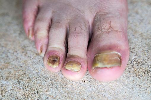 spik i foten infektion