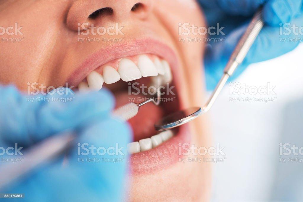 Aberto Feminino boca durante o checkup oral no Dentista. Seletiva - foto de acervo