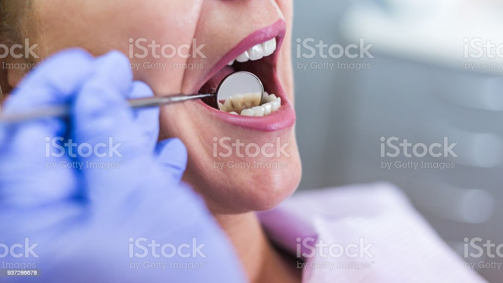 Open female mouth during oral checkup at the dentist. Selective stock photo