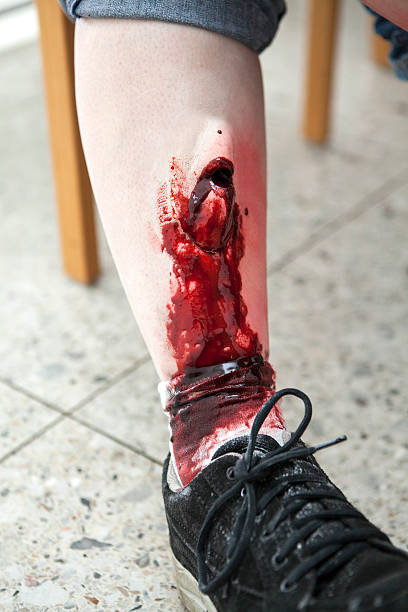 open leg fracture - open wounds stock photos and pictures
