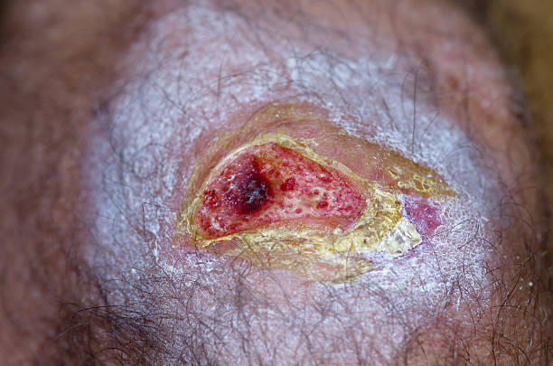 open wound - open wounds stock photos and pictures