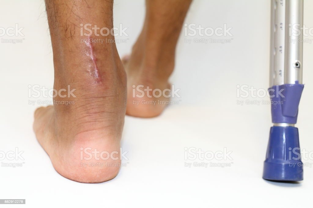 operation scar of Achilles tendon rupture and crutchs stock photo
