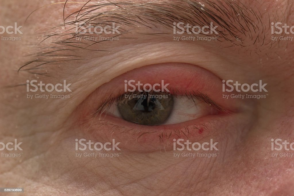 Ophtalmology - Eyelid Swelling closeup stock photo