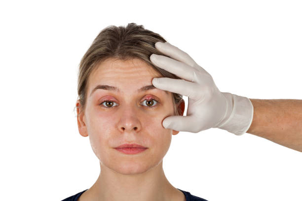 Ophthalmic infection stock photo
