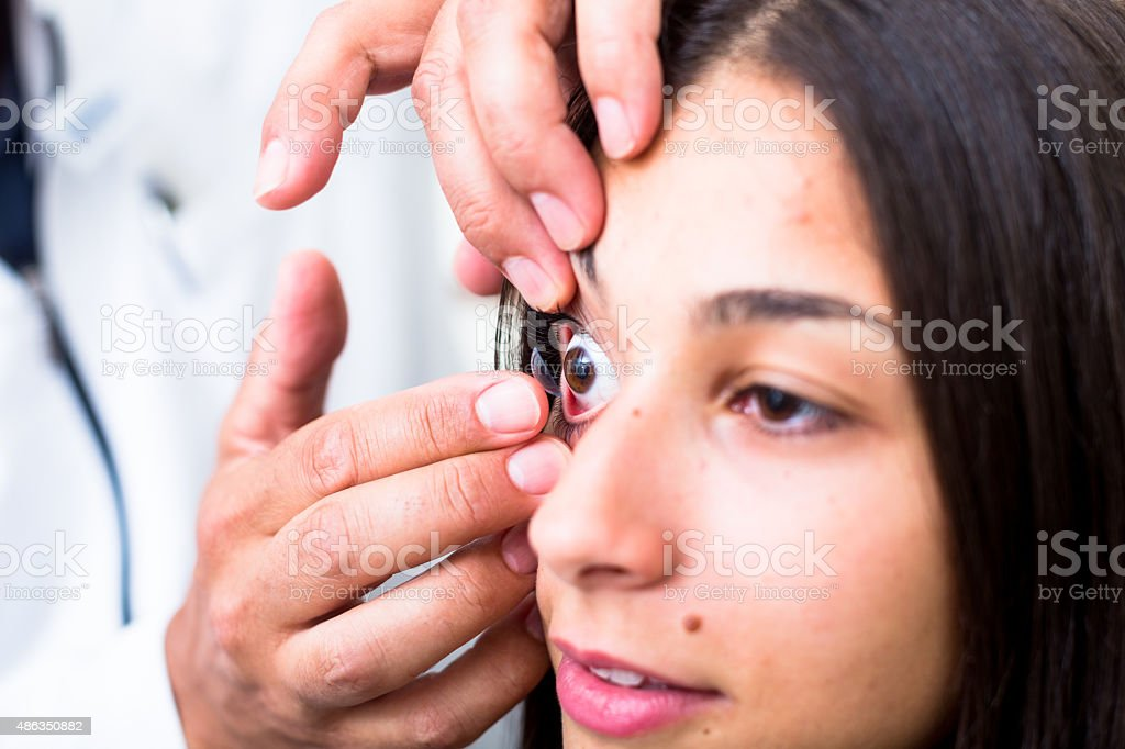 Optometrist putting contact lens into eye stock photo