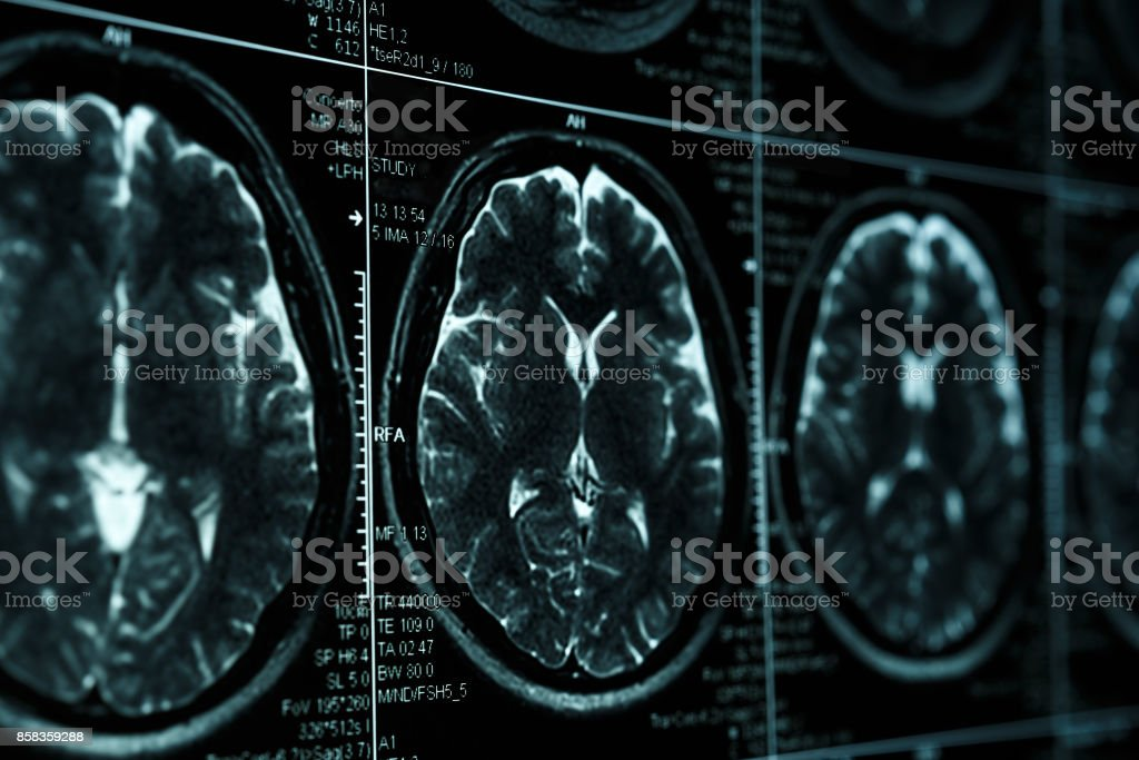 MRI or magnetic resonance image of head and brain scan. Close up view stock photo