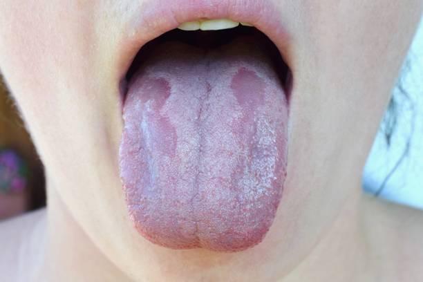 orale candidiasis oder oral überrannt (candida albicans), hefe-infektion auf der menschlichen zunge schließen sich häufige nebenwirkung bei der verwendung von antibiotika oder anderen medikamenten - menschlicher mund stock-fotos und bilder
