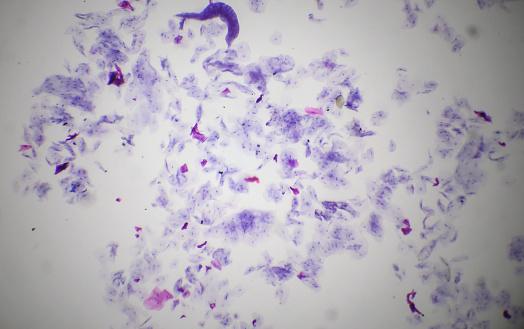 istock Oral cavity mucous membrane under the microscope 924322314