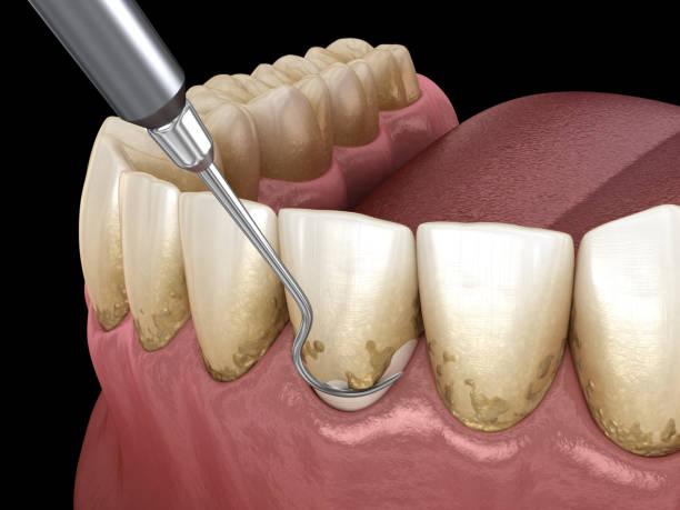 mondhygiëne: schalen en wortel schaven (conventionele parodontale therapie). medisch nauwkeurige 3d illustratie van menselijke tanden behandeling - kauwgom stockfoto's en -beelden
