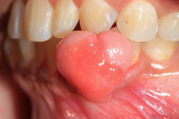 Oral Pyogenic Granuloma. stock photo
