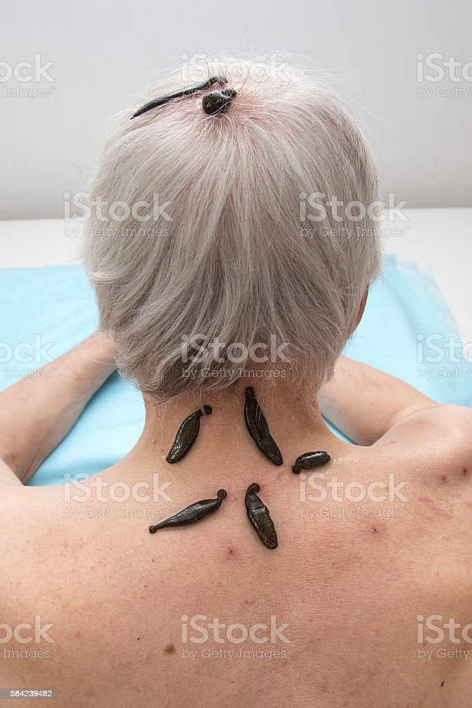 Oriental medicine in the treatment of people stock photo