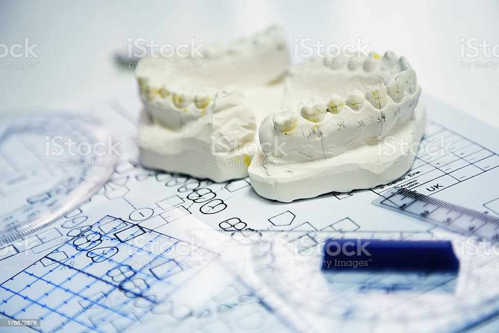 orthodontic molds stock photo
