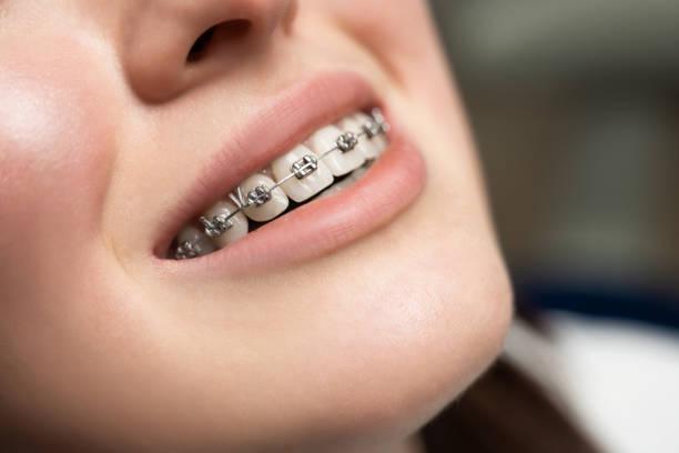 kieferorthopädische behandlung. dental care concept. schöne frau gesundes lächeln aus nächster nähe. nahaufnahme keramik und metall halterungen - kieferorthopäde stock-fotos und bilder