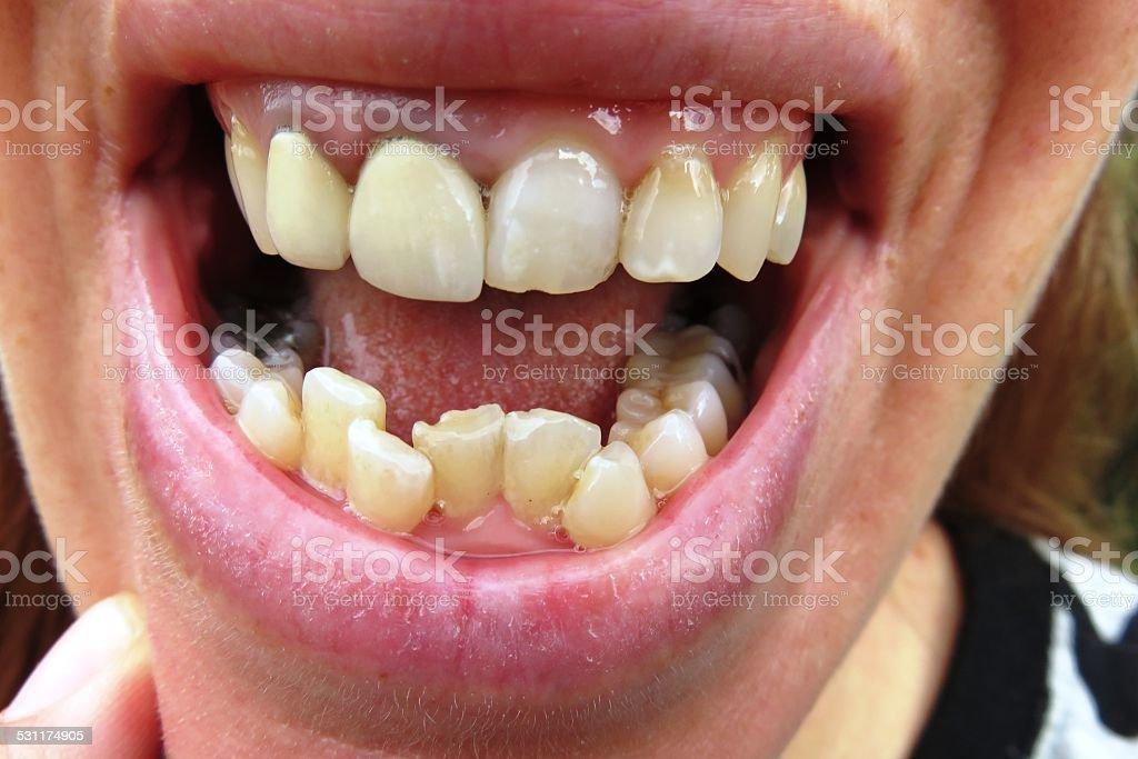 Orthodontic - Urgent stock photo