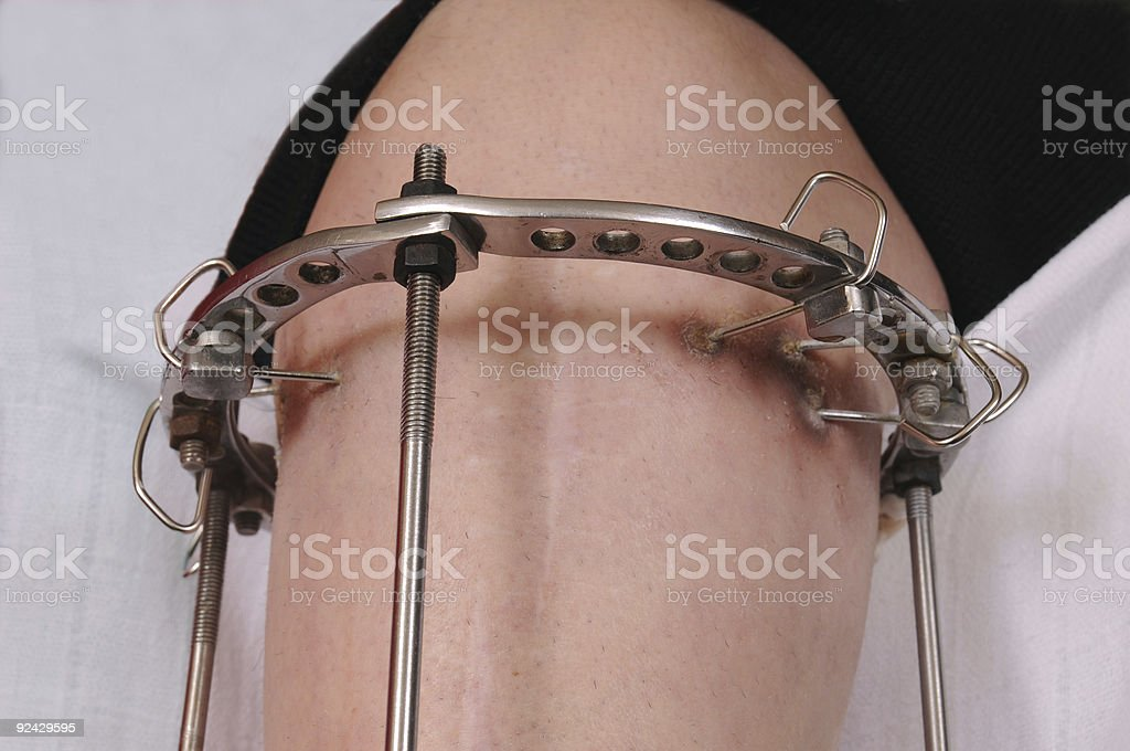 Orthopaedics royalty-free stock photo