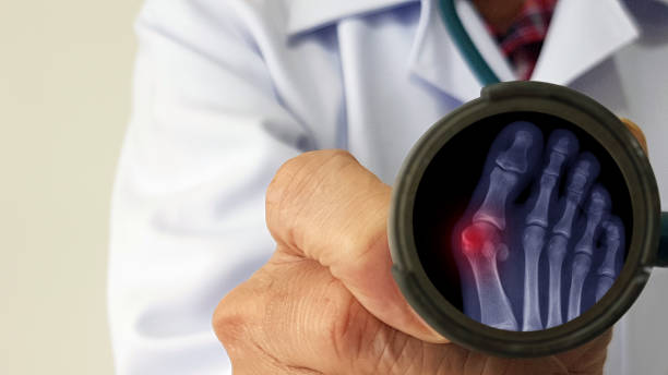 Orthopedic doctor exam and show film X-ray foot radiograph of Hallux valgus deformity or Bunion disease. The patient has toe pain problem. Medical diagnosis and treatment technology concept stock photo