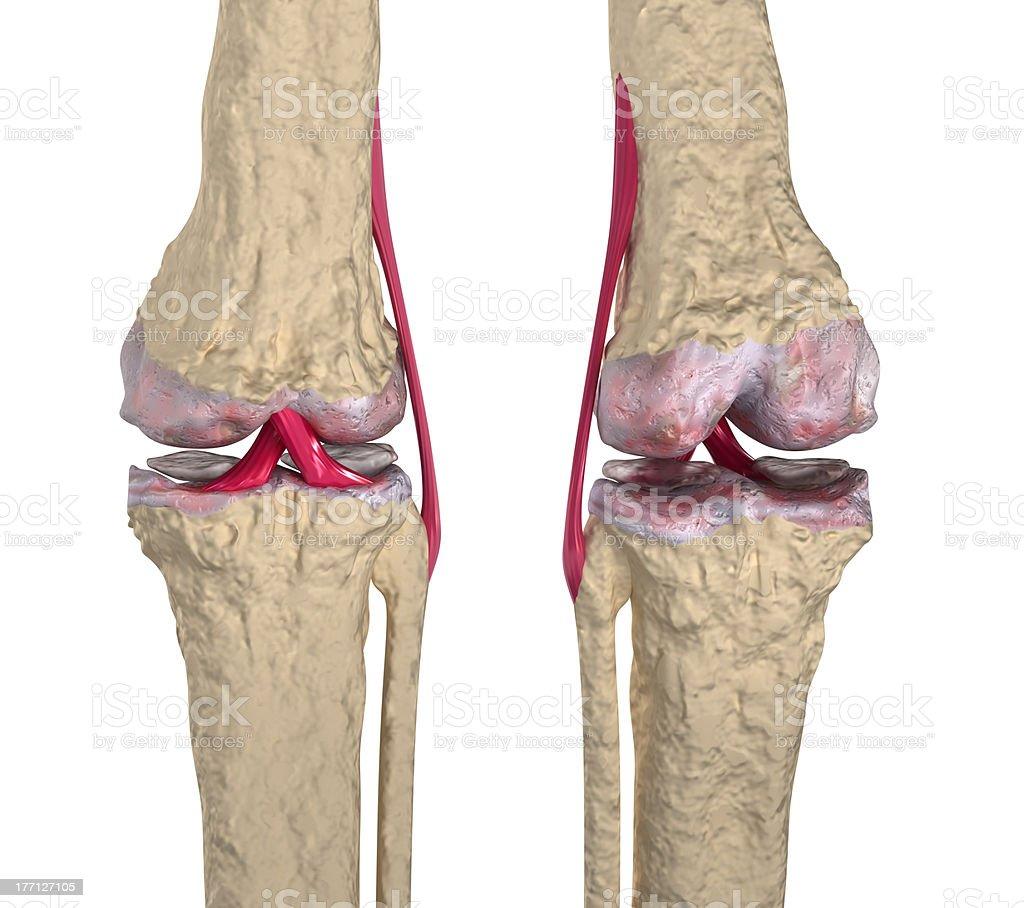 Arthrosen Kniegelenk Mit Bänder Und Cartilages Stock-Fotografie und ...
