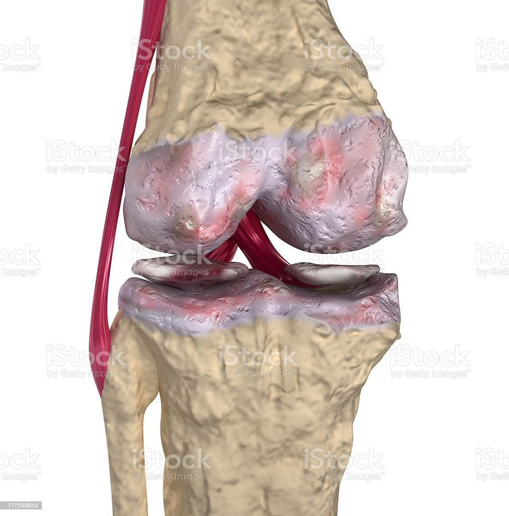 Osteoarthritis : Knee joint with ligaments and cartilages stock photo