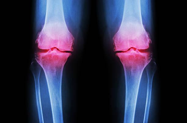 Osteoarthritis Knee ( OA Knee ) stock photo