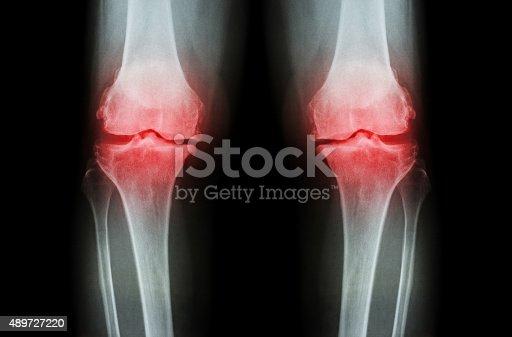 istock Osteoarthritis Knee ( OA Knee ) 489727220