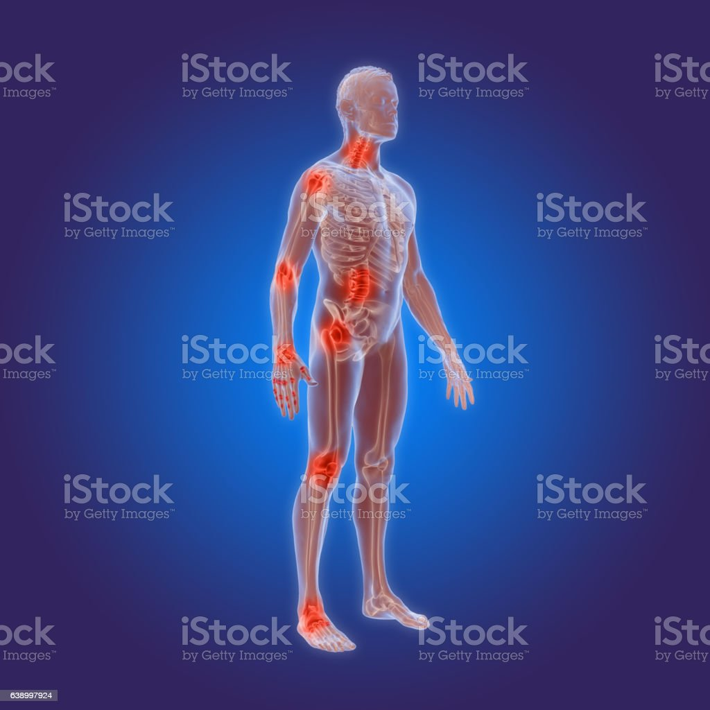 Osteoarthritis - rheumatoid arthritis in the human body - foto de stock