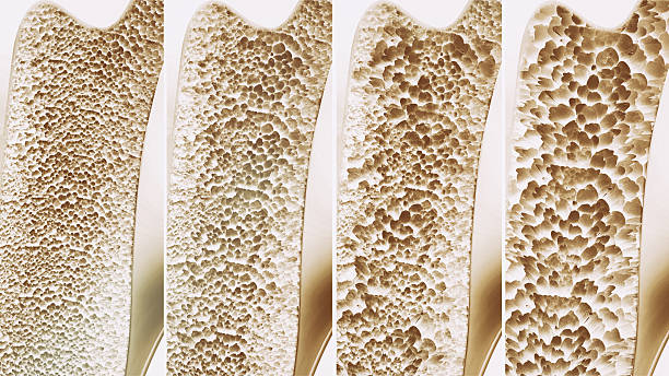 Osteoporosis 4 stages - 3d rendering stock photo