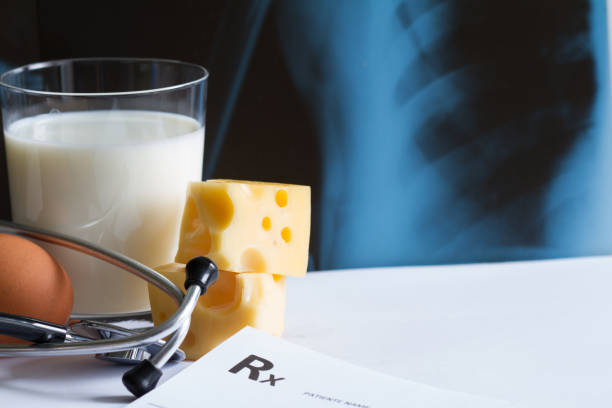 Osteoporosis calcium dairy product and x-ray photo stock photo
