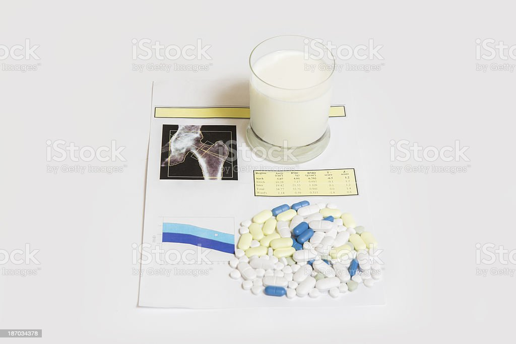 Osteoporosis checked on a medical test ...bone mineral density stock photo