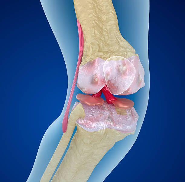 Osteoporosis of the knee joint,  Medically accurate 3D illustration  Osteoporosis of the knee joint,  Medically accurate 3D illustration  cartilage stock pictures, royalty-free photos & images