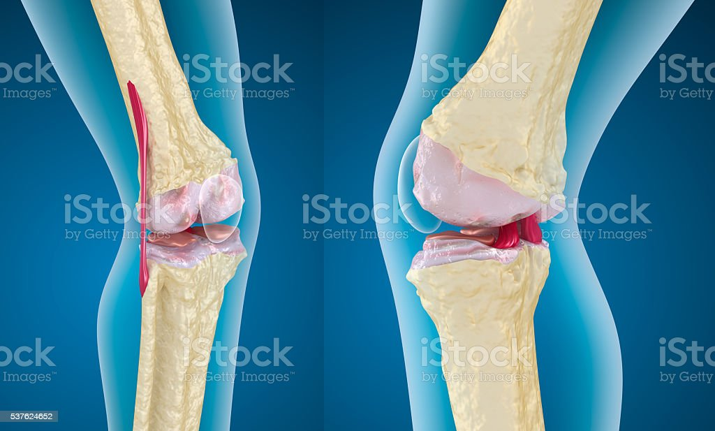 Osteoporosis of the knee joint stock photo