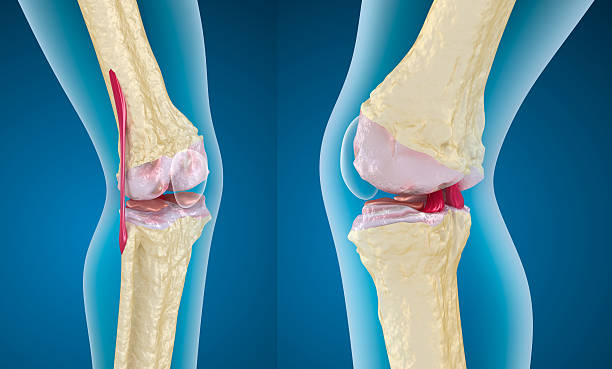 Osteoporosis of the knee joint Osteoporosis of the knee joint cartilage stock pictures, royalty-free photos & images