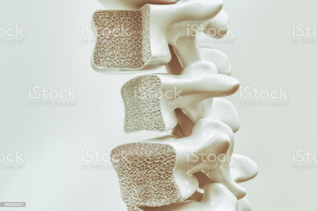 Osteoporosis on the spine - 3d rendering stock photo