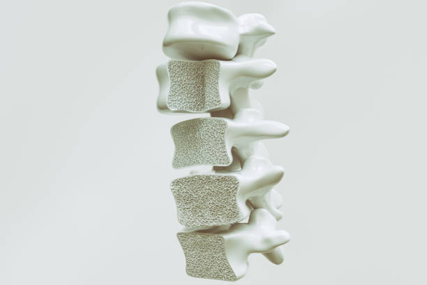 osteoporosis on the spine - 3d rendering - osteoporosi foto e immagini stock