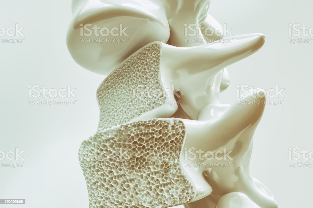 Osteoporosis on the spine - 3d rendering Osteoporosis on the spine -- 3d rendering Aging Process Stock Photo