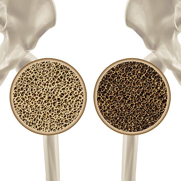 Osteoporosis stock photo