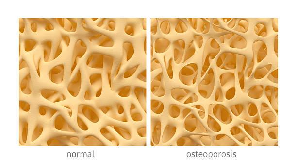 osteoporosi - osteoporosi foto e immagini stock