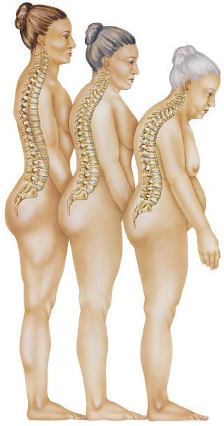 osteoporosi-progressione di vertbral fratture - osteoporosi foto e immagini stock