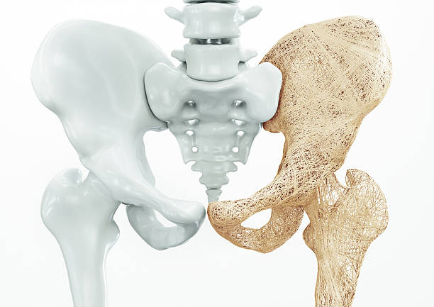 osteoporosis - upper limb bones - 3d rendering - osteoporosi foto e immagini stock