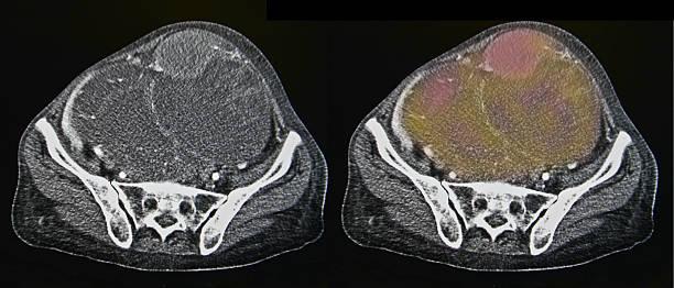 Ovarian cancer, CT stock photo
