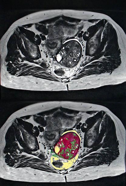 ovarian cancer, MRI stock photo