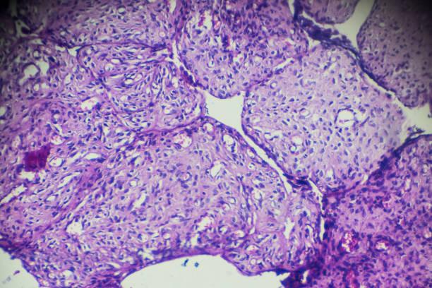 Ovary cystadenoma biopsy under light microscopy in different area stock photo
