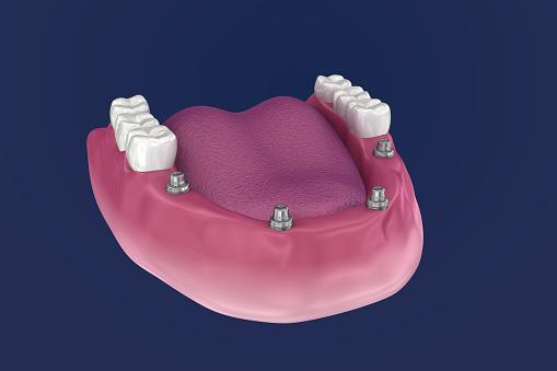 Overdenture Om Te Zitten Op 4 Implantaten Bal Bijlagen 3d Illustratie Stockfoto en meer beelden van Computergrafieken