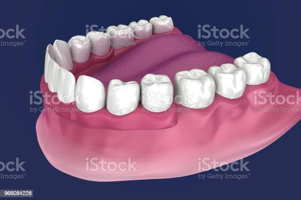 Overdenture Ska Sitta På 4 Implantat Boll Bilagor 3d Illustration-foton och fler bilder på Artificiell