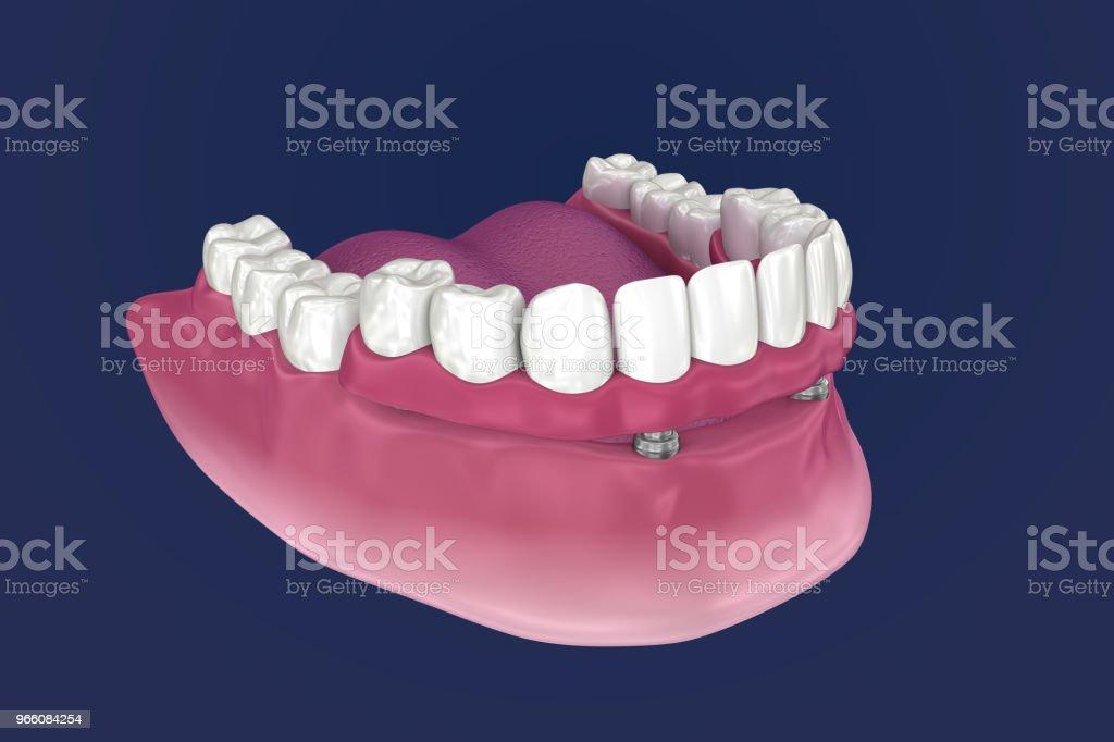 Overdenture ska sitta på 4 implantat - boll bilagor. 3D illustration - Royaltyfri Artificiell Bildbanksbilder