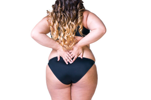 overweight female body, fat woman with cellulitis on thighs - photograph stock photos and pictures
