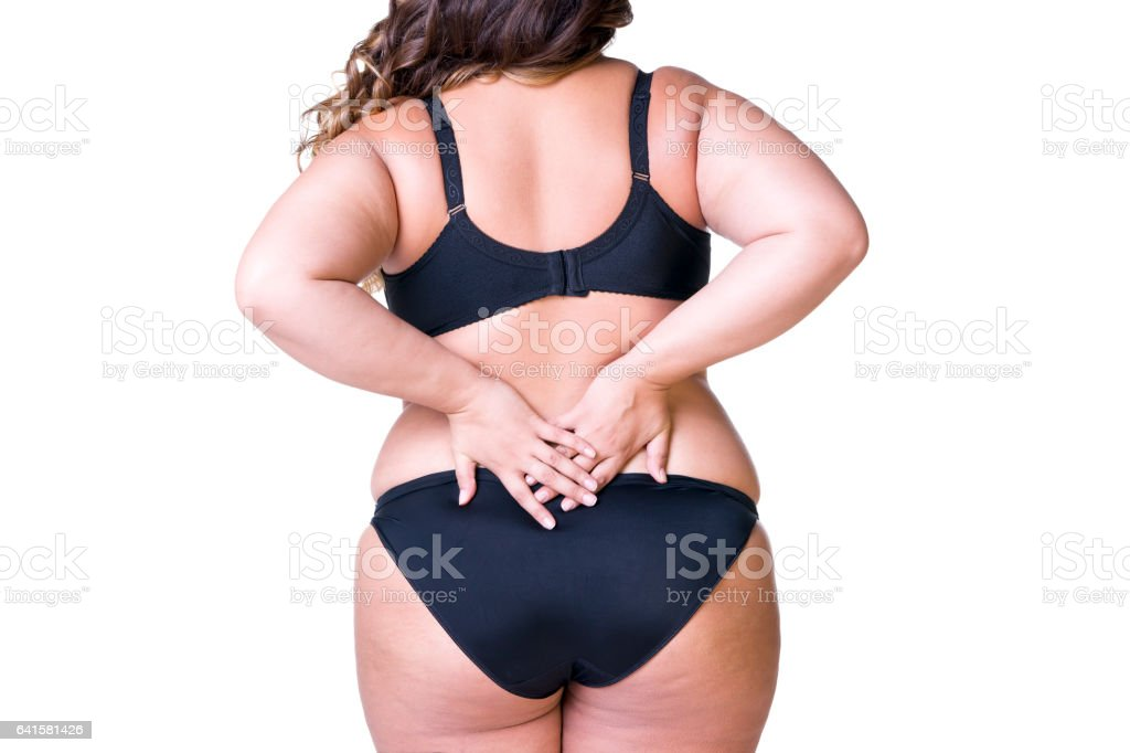 Overweight female body, fat woman with cellulitis on thighs stock photo