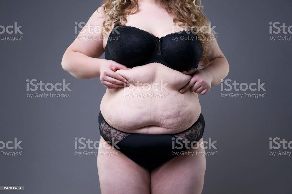 Übergewichtige Frauen Bauch Dicke Frau Mit Schwangerschaftsstreifen ...