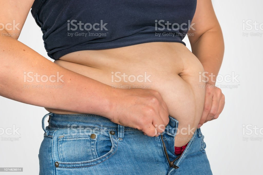 Overweight woman body with fat on belly - overweight and obesity...