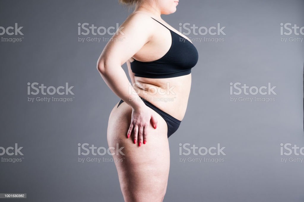 Overweight woman with fat belly, obesity female body on gray...