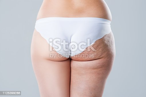 istock Overweight woman with fat cellulite legs and buttocks, before after concept, obesity female body isolated on white background 1125399288